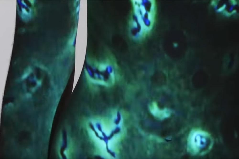 Segundo cerebro en el vientre bacterias