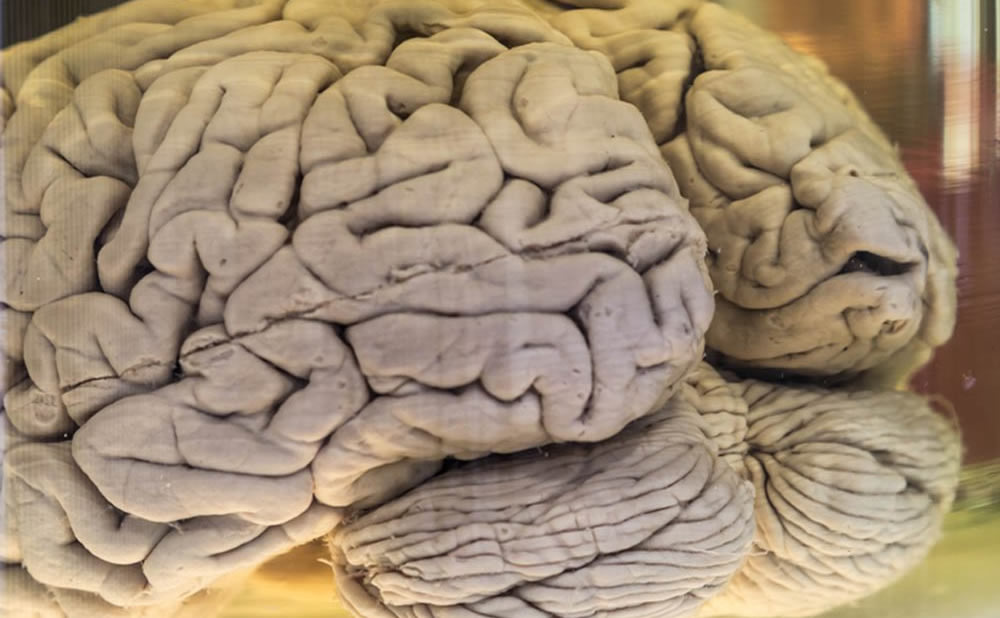 Cerebro Einstein alto cociente intelectual CI genio