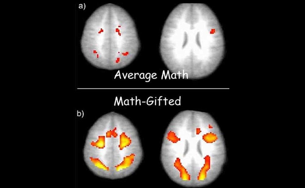 Cerebro superdotado vs normal