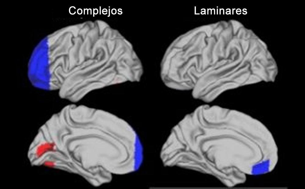 Cerebro superdotado Complejo Laminar diferencias